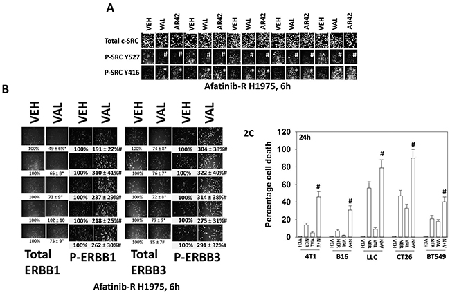 Valproate activates c-SRC/ERBB1/ERBB3 and its anti-tumor activity is enhanced by the ERBB1/2/4 suicide inhibitor neratinib.