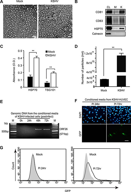 Isolation of extracellular vesicles (EVs) from KSHV-infected primary human endothelial cells.