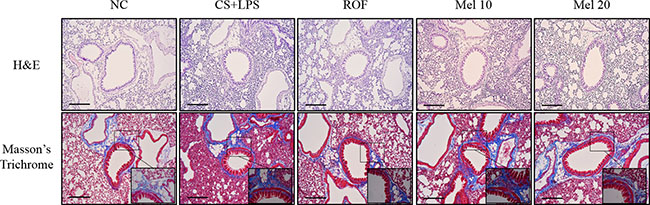 Melatonin attenuates inflammatory responses and collagen deposition in lung tissue induced by cigarette smoke and LPS exposure.