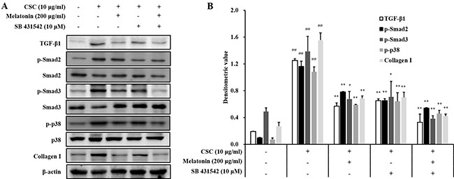 Melatonin down-regulates TGF-β1 in in H292 cells stimulated with cigarette smoke condensate (CSC).