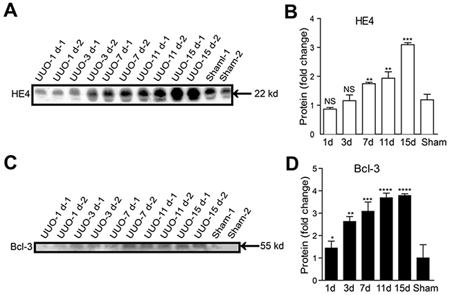 Serum Bcl-3 protein levels showed a significant increase from 3 days after UUO.