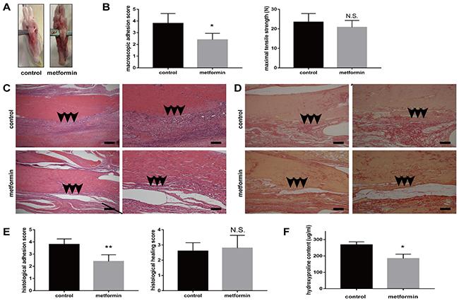 metformin for weight loss in non diabetic patients