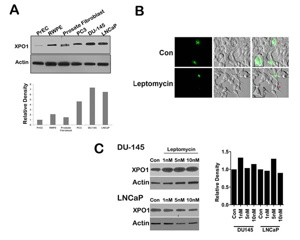 XPO 1 is upregulated and active in prostate cancer cell lines.