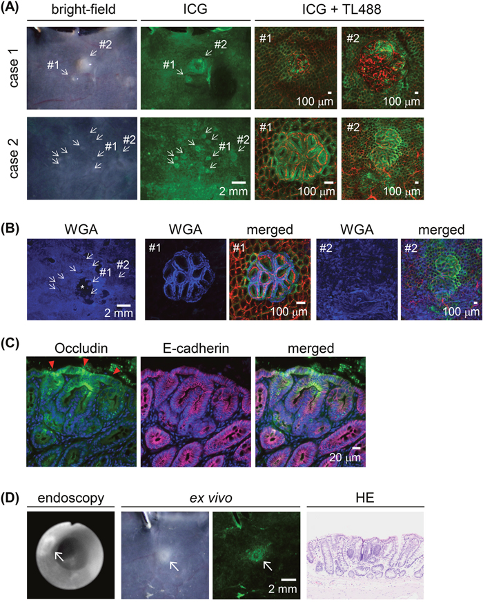 ICG fluorescence imaging of macroscopically small proliferative lesions in AOM-induced colon carcinogenesis in rats after a 30-min ICG enema.