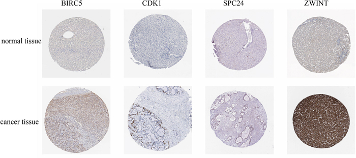 Immunohistochemistry of core genes in normal and cancerous tissue.