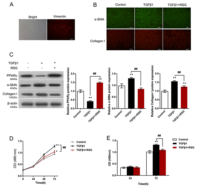 Effects of RSG on TGF-β1-induced HTFs activation and proliferation.