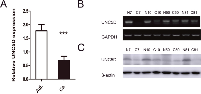 UNC5D is attenuated or silenced in PTC tissues.