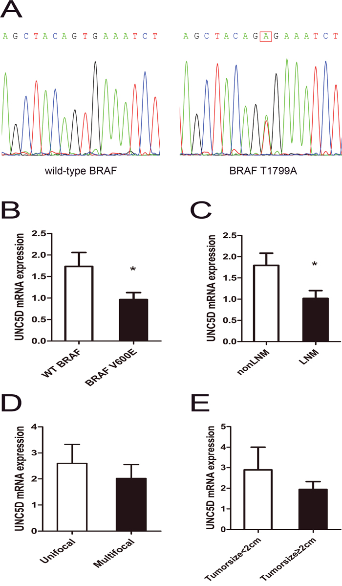 Aggressive tumor behaviors affected UNC5D mRNA expression levels in PTC.