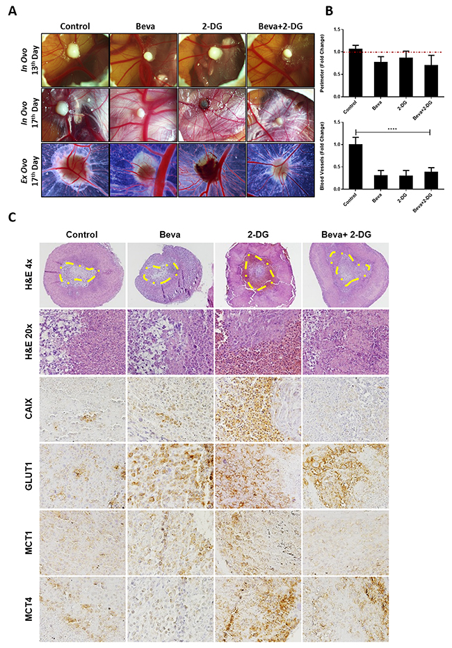 In vivo effect of Bevacizumab in combination with glucose analogue 2-DG in U251 induced tumors.