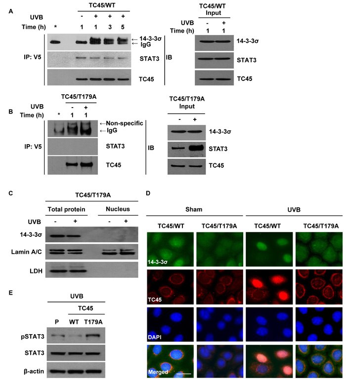 14-3-3σ transports TC45 into the keratinocyte nucleus following UVB irradiation through direct binding.