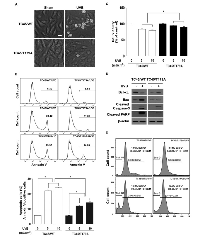 Inhibition of TC45 nuclear translocation suppresses UVB-induced apoptosis in keratinocytes.
