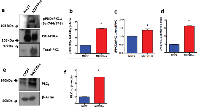 Expression and differential phosphorylation of PKD/PKCμ and PLCγ.