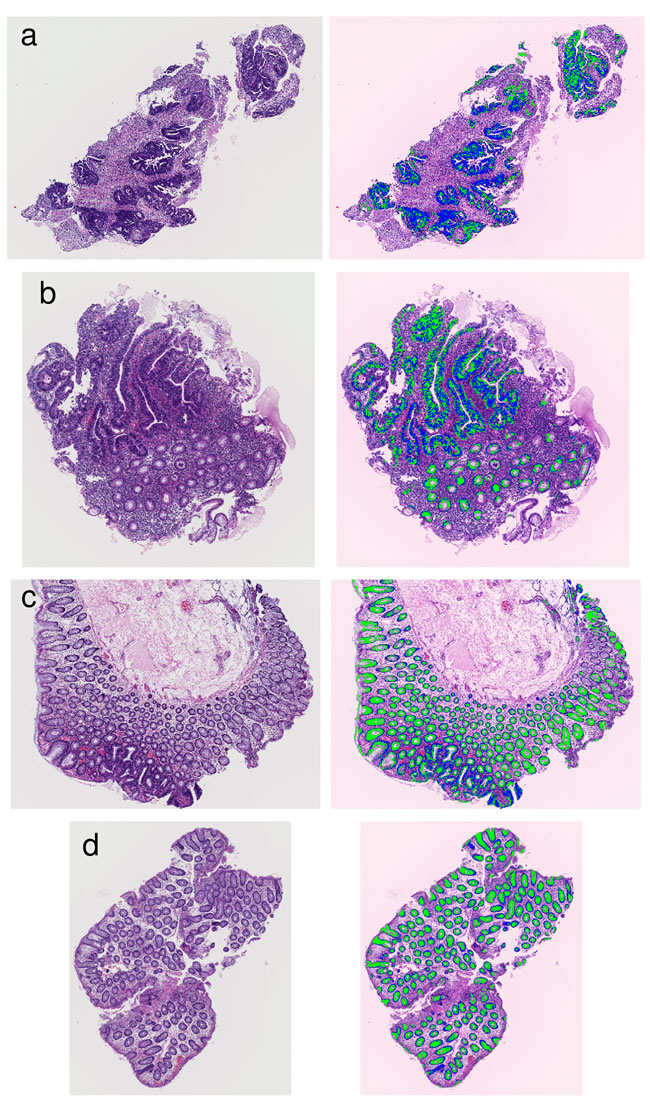 Examples of results that segmented glandular nuclei and glandular cytoplasm.