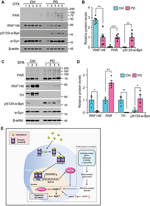 Dysregulation of RNF146-PARP1 pathways in PD pathogenesis.