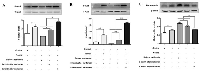Effects of serum from normal and IR women on insulin signaling and betatrophin.