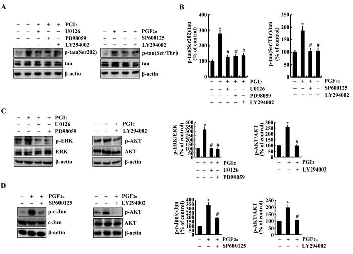 Involvement of PI3-K/AKT, ERK1/2 and JNK/c-Jun pathways in regulating tau phosphorylation at the sites of both Ser 202 and Ser 400/Thr 403/Ser 404 in PGI