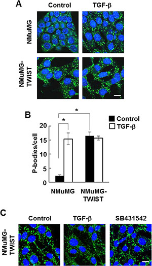 NMuMG cells expressing TWIST have high levels of P-bodies.