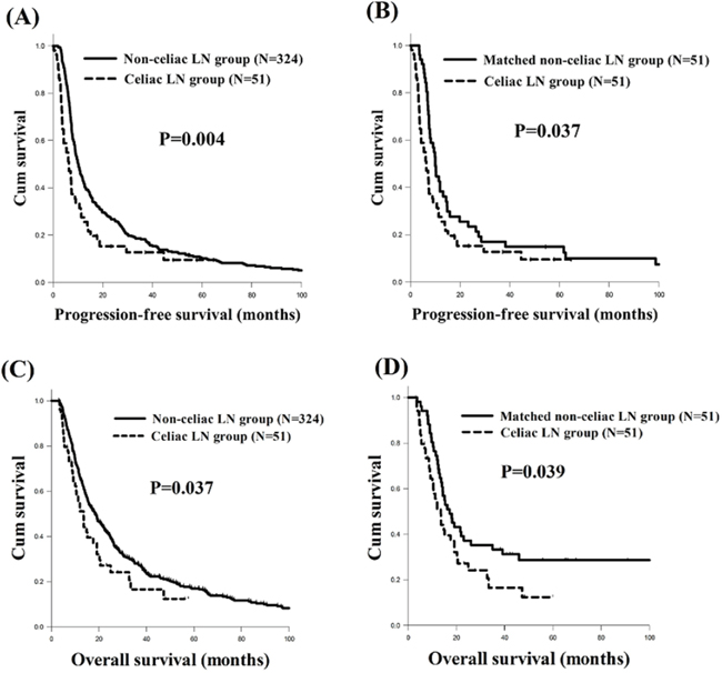 The progression-free survival (PFS) and overall survival (OS) curves of esophageal squamous cell carcinoma patients with/without celiac LN metastasis.
