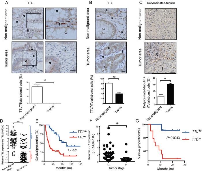 Suppressed TTL expression in stromal cells of human colon and liver cancer tissues.