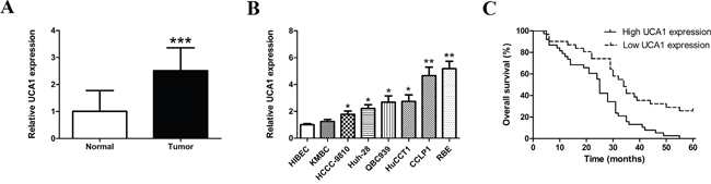 Expression levels of UCA1 in CCA samples and cell lines and its correlation with overall survival.