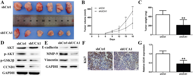 Effect of downregulated UCA1 on tumorgenesis in vivo.