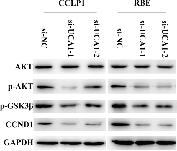 AKT/GSK-3β signaling pathway is involved in regulation of UCA1 on CCND1 expression.
