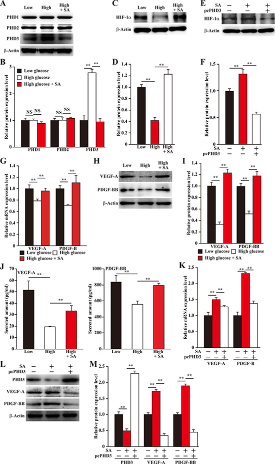 Salidroside restores the expression of skeletal muscle cells angiogenic factors repressed by hyperglycemia.