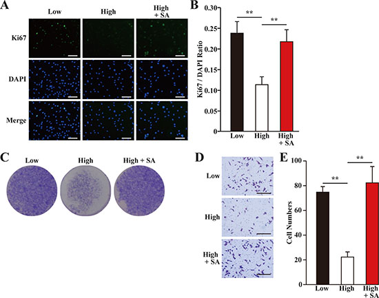 Salidroside restores skeletal muscle cells proliferation and migration potentials suppressed by hyperglycemia.