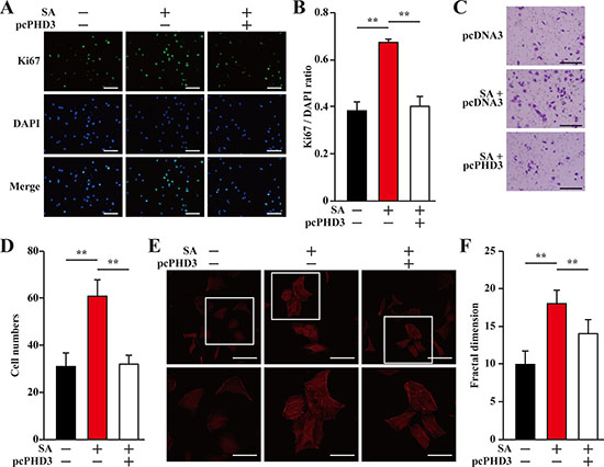 Salidroside enhances endothelial cells proliferation and migration potentials by suppressing hyperglycemia-induced skeletal muscle cells PHD3 accumulation.