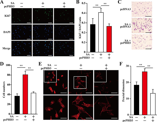 Salidroside enhances smooth muscle cells proliferation and migration potentials by suppressing hyperglycemia-induced skeletal muscle cells PHD3 accumulation.