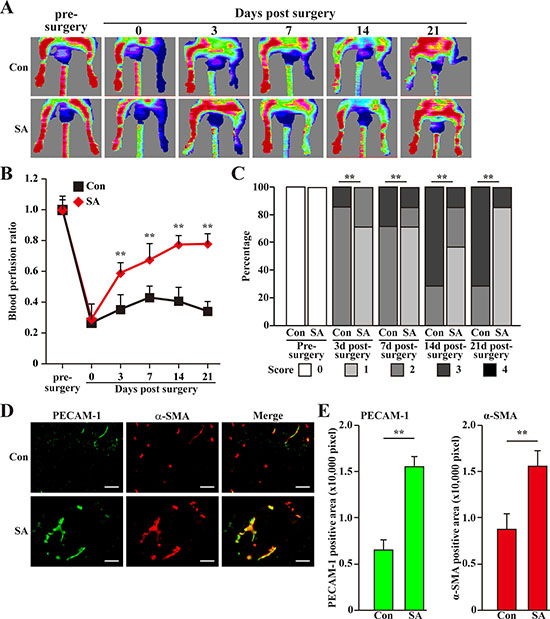 Salidroside promotes blood perfusion recovery by inducing neoangiogenesis in diabetic HLI model mice.