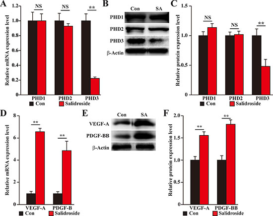 Salidroside promotes blood perfusion recovery by suppressing PHD3 and promoting angiogenic factors expression in the gastrocnemius muscle of diabetic HLI model mice.