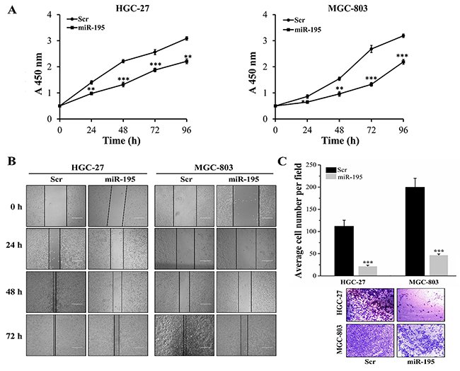 MiR-195 inhibited cell proliferation, migration and invasion in vitro GC cells.