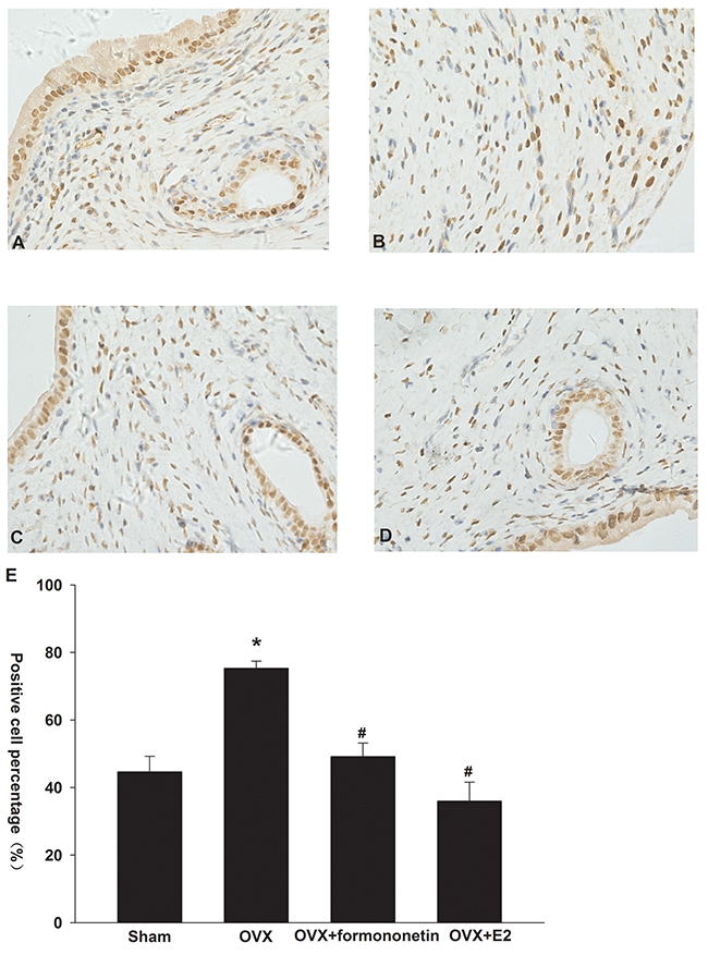 Effect of formononetin on the level of ERa protein in the uterine tissue of OVX rats.