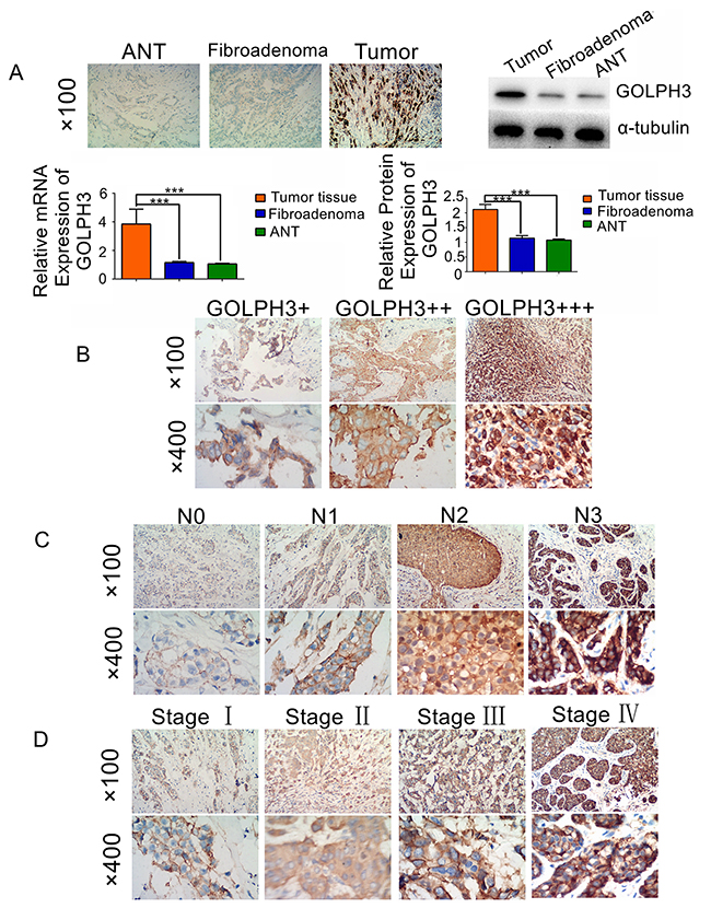 GOLPH3 is overexpressed in breast cancer.