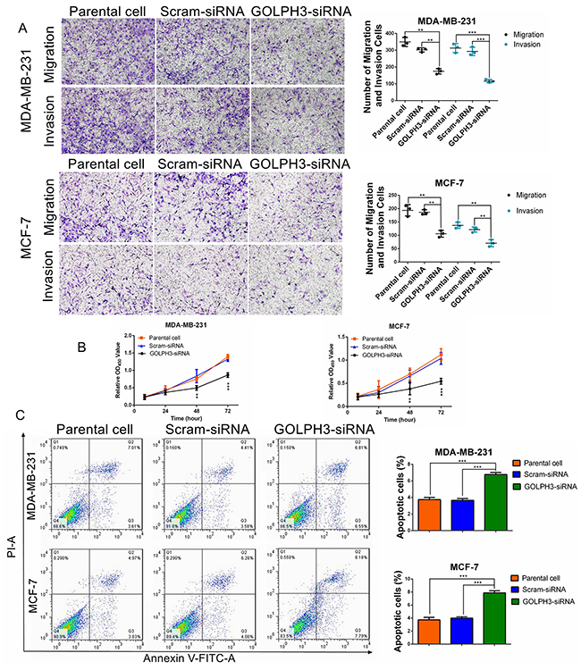 GOLPH3 silencing inhibits breast cancer cell migration, invasion, and proliferation, and promotes apoptosis.