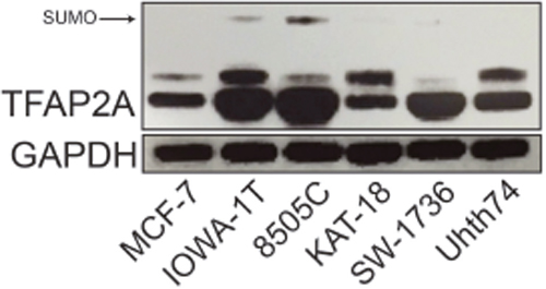Expression of SUMO-conjugated TFAP2A in ATC Cell Lines.