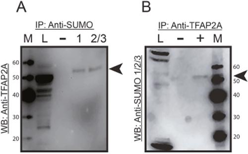 Immunoprecipitation of SUMO Conjugated TFAP2A.