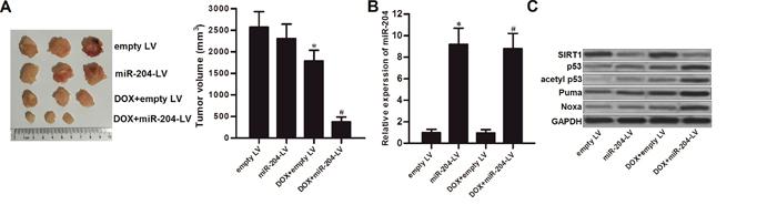 MiR-204 enhances the anti-tumor effect of DOX on LNCaP in vivo.