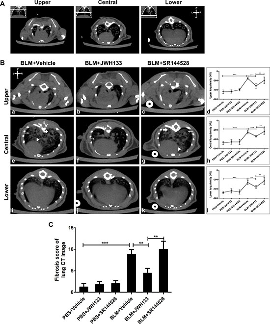 CB2R agonist JWH133 prevents BLM-induced computed tomography images of lung damage and fibrosis in mice.