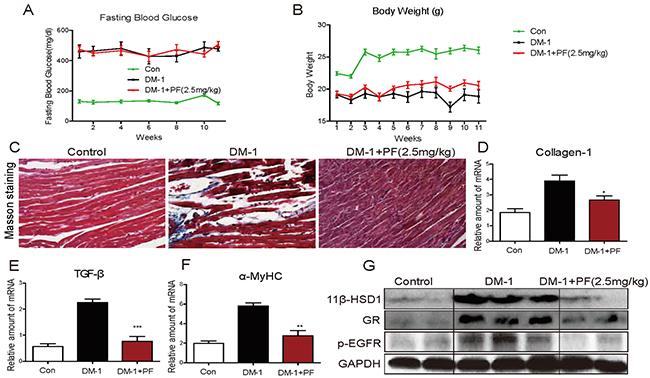 11β-HSD1 inhibition did not change serum glucose levels but reduced cardiac alterations in STZ-induced type 1 diabetic mice.