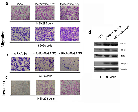 The expression of the HMGA1Ps affects cell migration and invasion.