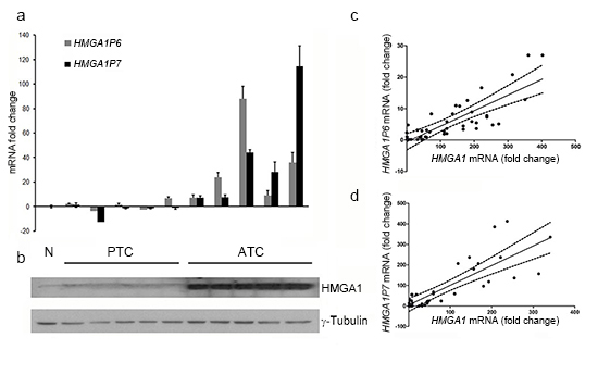 HMGA1 protein expression positively correlates with the expression of the HMGA1Ps in ATC.