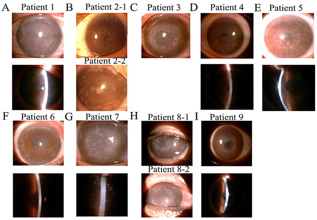 Slit-lamp photographs of patients from nine families with macular corneal dystrophy (MCD).