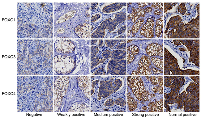 Expressions of FOXOs in cancer and paracancerous tissue, detected by immunohistochemistry.