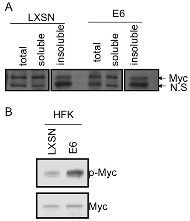 E6 increases Myc phosphorylation without induction of Myc expression.