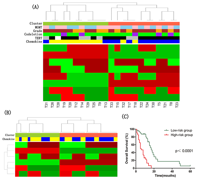 The molecular classification of IDH wild-type astrocytomas.