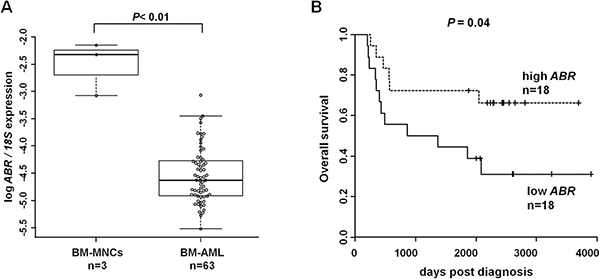 ABR expression is downregulated in acute myeloid leukemia (AML) and high ABR expression is associated with improved outcome.