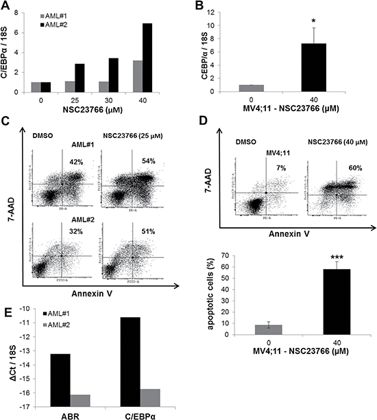 Rac1 inhibitor induced C/EBPα expression in AML primary cells.