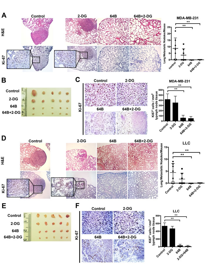 Combined treatment with 64B and 2-DG suppresses tumor metastasis.